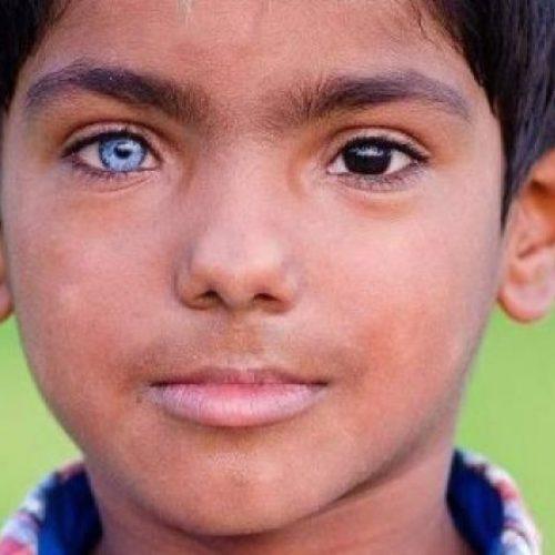 Djaloshi 'unik' me një sy të kaltër dhe një të zi