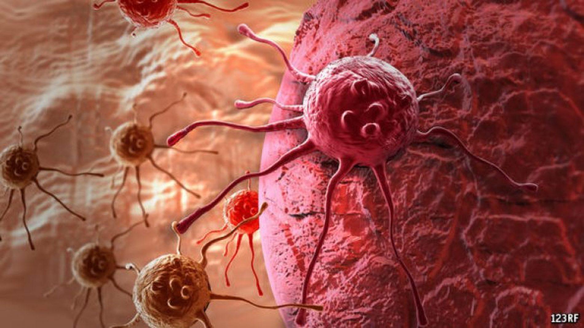 """Shpjegon """"The Economist"""": Përse nuk është zbuluar kura kundër kancerit?"""