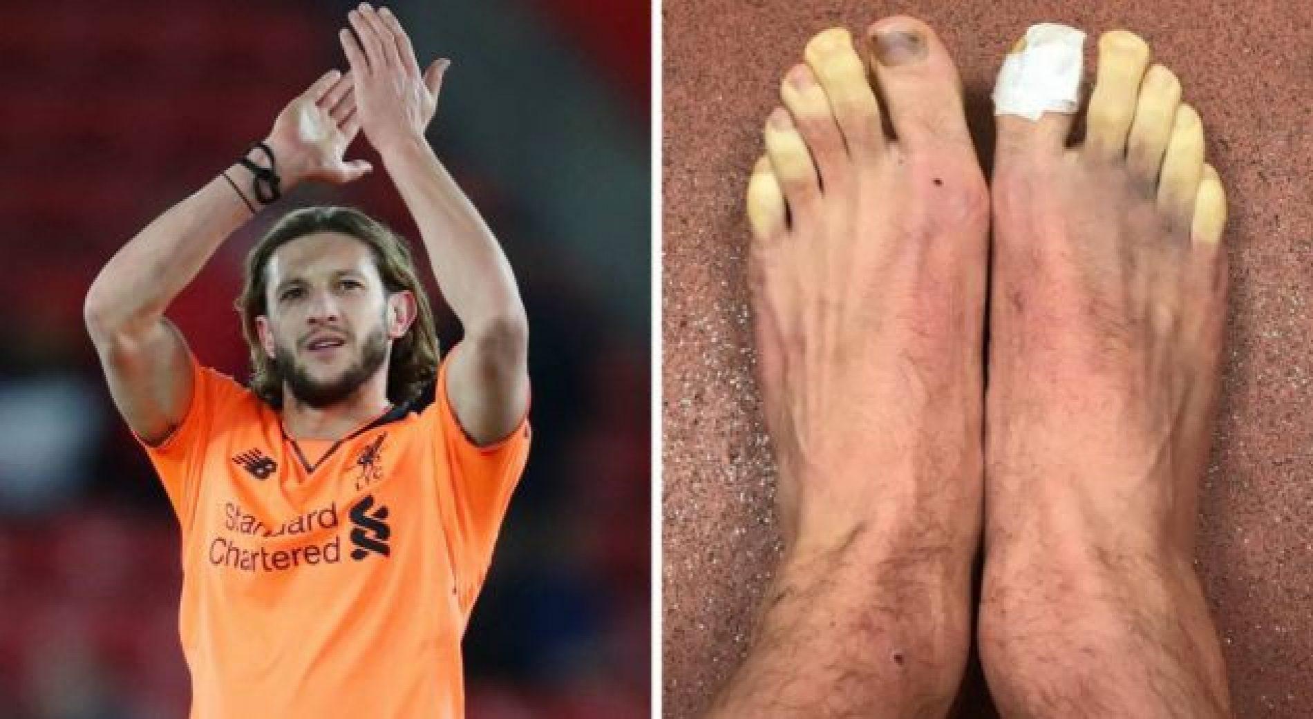 Lallana tregon gishtat e ngrirë të këmbeve pas ndeshjes ndaj Southampton